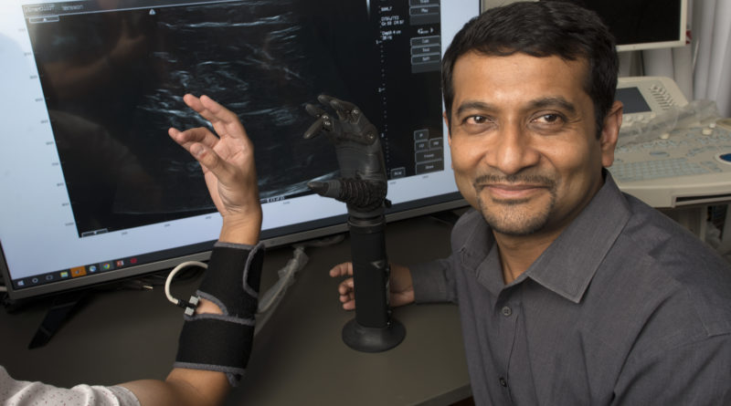 Click here to see how NSF funded technology, developed by Siddhartha Sikdar's team, can enhance dexterity and improve quality of life for individuals using prosthetics.